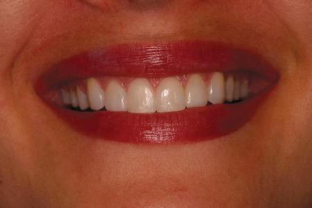 Final result of composite bonding, Full smile.