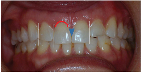 Pre-op evaluation illustrating smile design modifications.