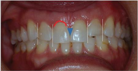 Pre-op evaluation illustrating smile design modifications.