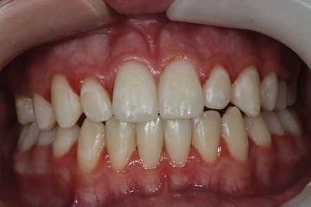 A preoperative retracted full smile view of a patient with malformed maxillary lateral incisors that do not adequately fill the space between maxillary central incisors and canines after orthodontics has been completed.