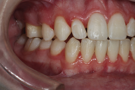A retracted preoperative view of tooth number 7 (12).