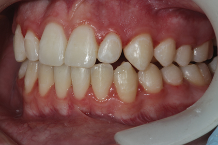A retracted preoperative view of tooth number 10 (22).