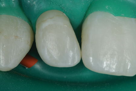 Tooth number 7 (12) is shown after rubber dam placement.