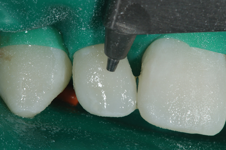 An air abrasion unit (Prep Start: Danville Materials) is used to remove the biofilm prior to the restorative procedure.