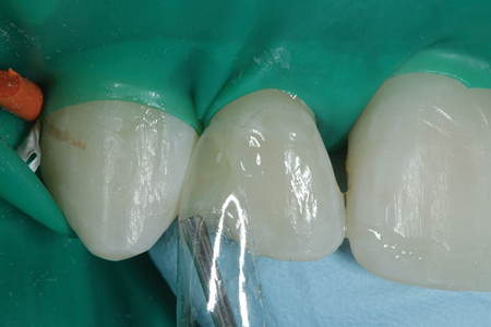 A Bioclear matrix is placed between the rubber dam and the tooth surface without using a wedge as flowable resin (Evanesce Flow: Clinician's Choice).