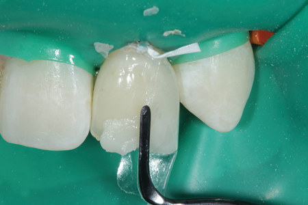 The distal surface of tooth # 10 (22) is shown restoring the proper tooth contour.