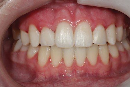 A retracted full smile view of tooth numbers 7 (12) and 12 (22) after placement of composite prior to finishing and polishing.