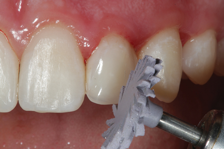 A.S.A.P. pre-polisher (Clinician's Choice) (purple) is used to begin to develop the luster of the restoration on tooth number 10 (22).