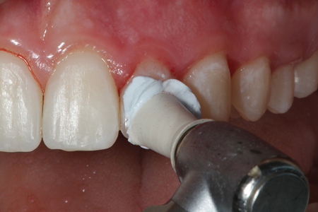 Diamond paste is used to place a final luster on the restorations.
