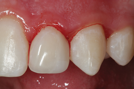 Tooth number 10 (22) is shown after placement and polishing is completed.