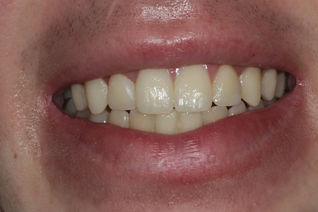 A full smile view of the completed composite restorations on tooth numbers 7 (12) and 10 (22).