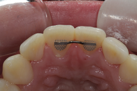 A palatal view of the completed restorations.