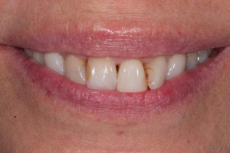 Pre-operative smile.