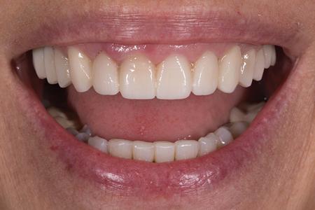 Dental Esthetic