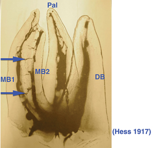 Dr. Hess showed the presence of MB1 and MB2 canals and the communications between them