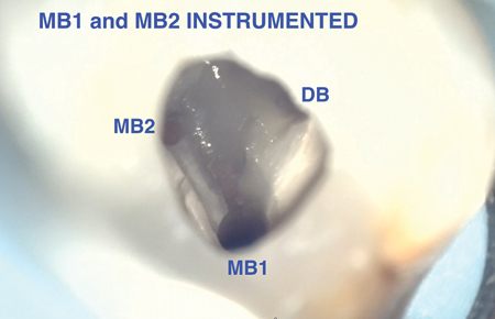 MB2 Canal