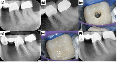 Symptomatic mandibular first molar with a radiographic periapical radiolucency treated in two visits.