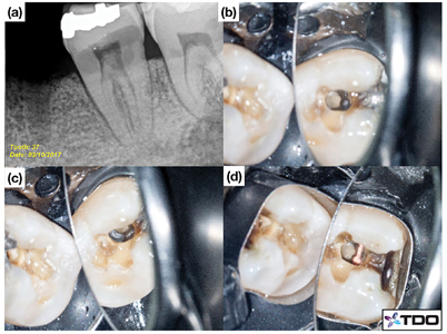 Pre-operative radiograph of tooth #3.7 with sub-gingival buccal caries. (b, c) Conservative access. (d) Matrix band adaptation.