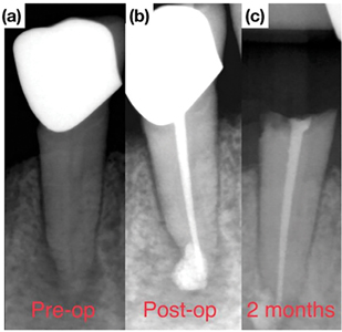 """Tooth #4.5 diagnosed with a necrotic pulp and symptomatic apical periodontitis. (b) Post-operative radiograph (no post was cemented). (c) Crown """"snap off"""" failure occurred 2 months following treatment."""