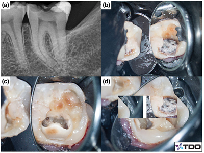 Case of Dr. Viraj Vora: (a) Pre-operative radiograph of tooth #3.7 with (b) caries on the buccal aspect of the occlusal surface. (c, d, e, f) Caries-leveraged access allowing the preservation of most of the pulp chamber roof.