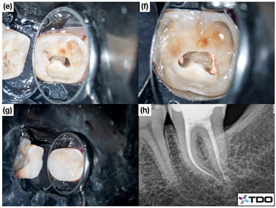 Access cavity restored with composite resin. (h) Post-operative radiograph.
