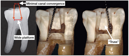 """Mandibular molar with wide platform and minimal canal convergence suitable for dual access. The maintenance of the """"truss"""" provides added strength (45)."""