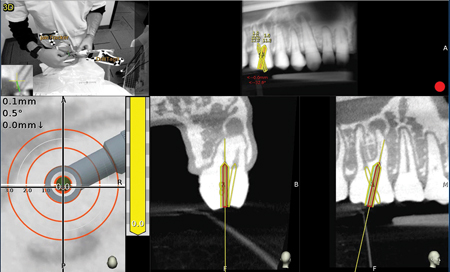 Maxillary molar – The planned canal location is on target [yellow 0.0mm].
