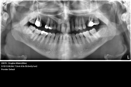 Unconventional Implant Placement Through An Impacted Canine
