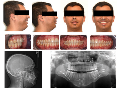 Evaluation after the surgical procedure and the completion of the postsurgical orthodontic treatment.
