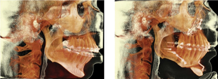 Preoperative (left) and postoperative tomographic images.