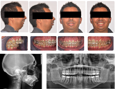 Presurgical assessment after initial orthodontic treatment.