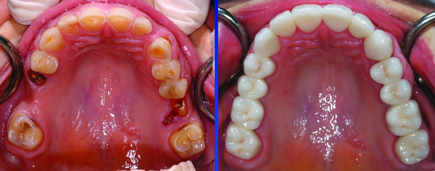 A full mouth reconstruction utilizing a combination of monolithic zirconia (posterior teeth) and lithium disilicate (anterior teeth) restorations