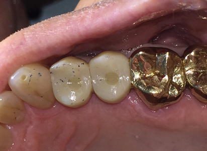 2-year post-op, occlusal view.