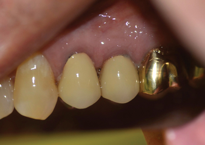 Buccal view.