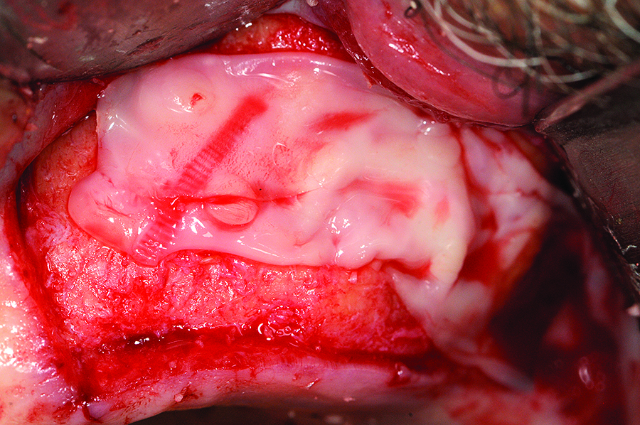 A PRP membrane is placed to cover the lateral sinus window and the graft placed.