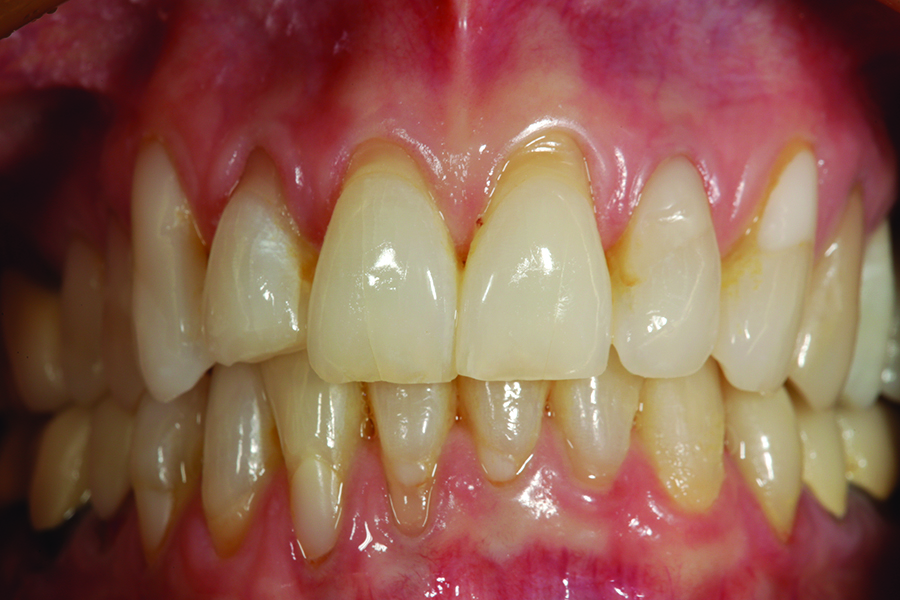 This is a preoperative retracted facial view showing tooth # 7