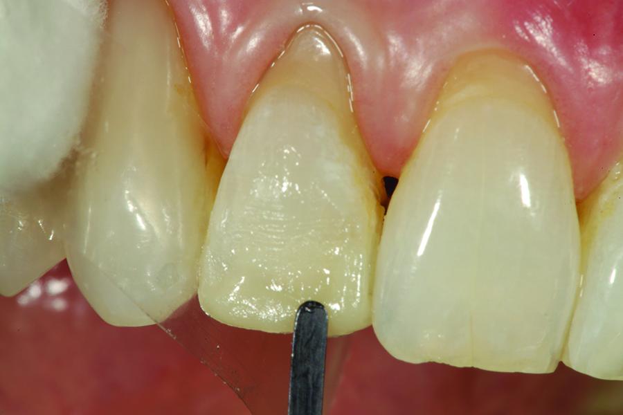OMNICHROMA BLOCKER (Tokuyama Dental America)