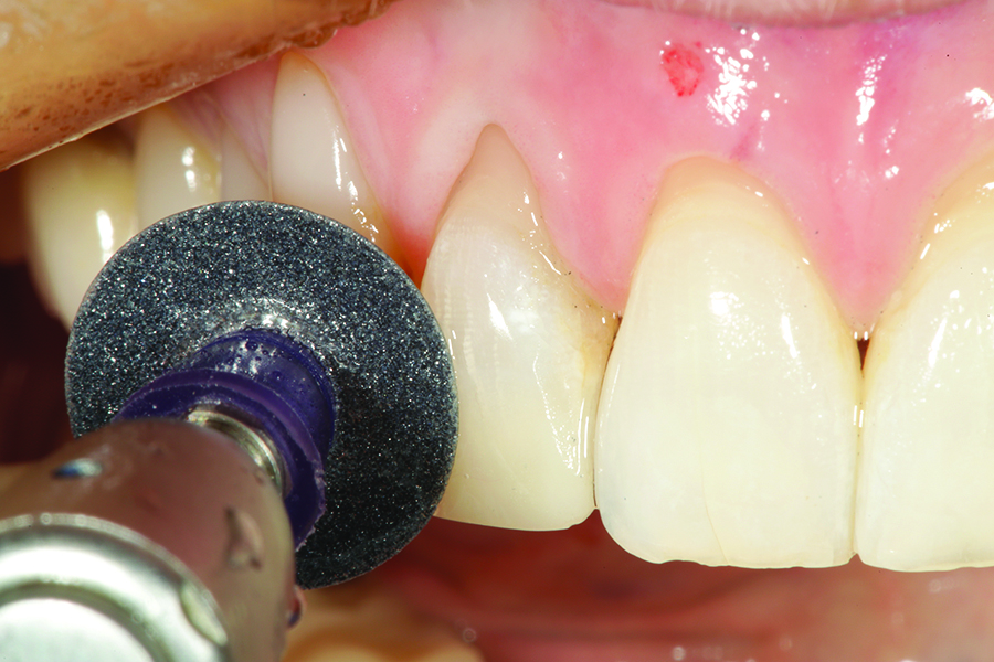 An abrasive disc (Super Snap: Shofu Dental