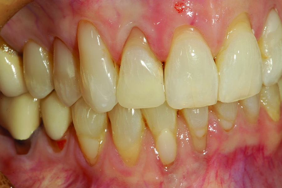 A facial retracted view of the completed OMNICHROMA restoration on tooth # 7
