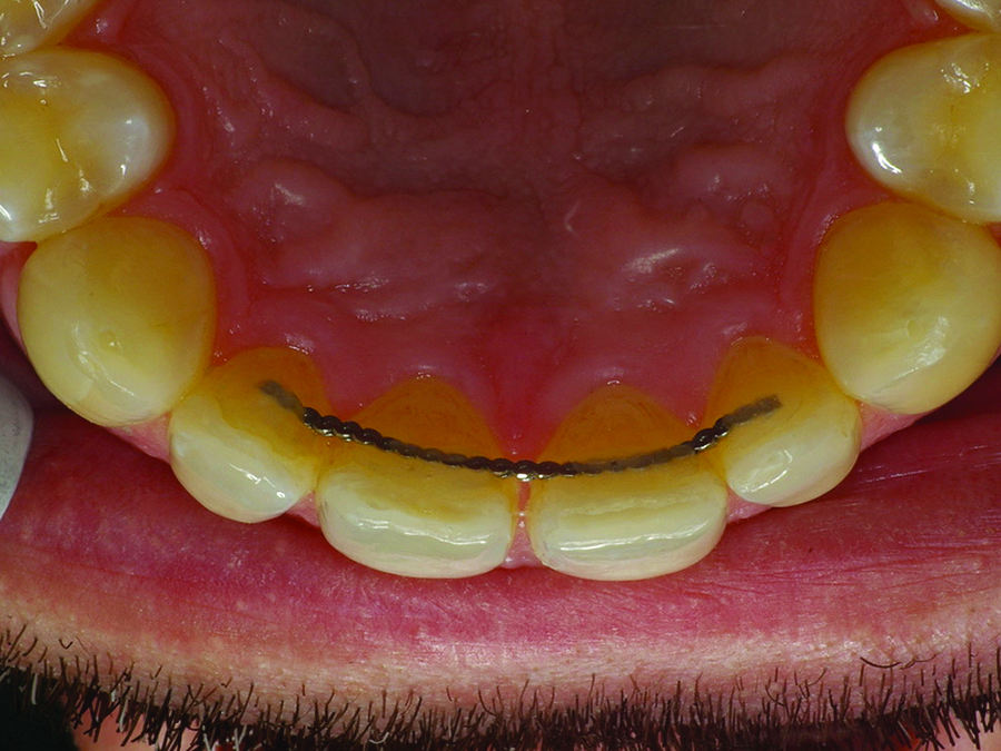 Post-orthodontic treatment showing lingual bonded retention from 12 to 22.
