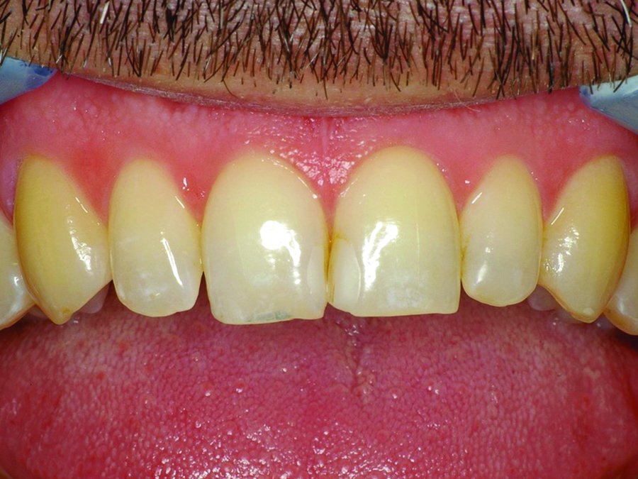 poor incisal edge positioning and mismatch of the central incisors' widths