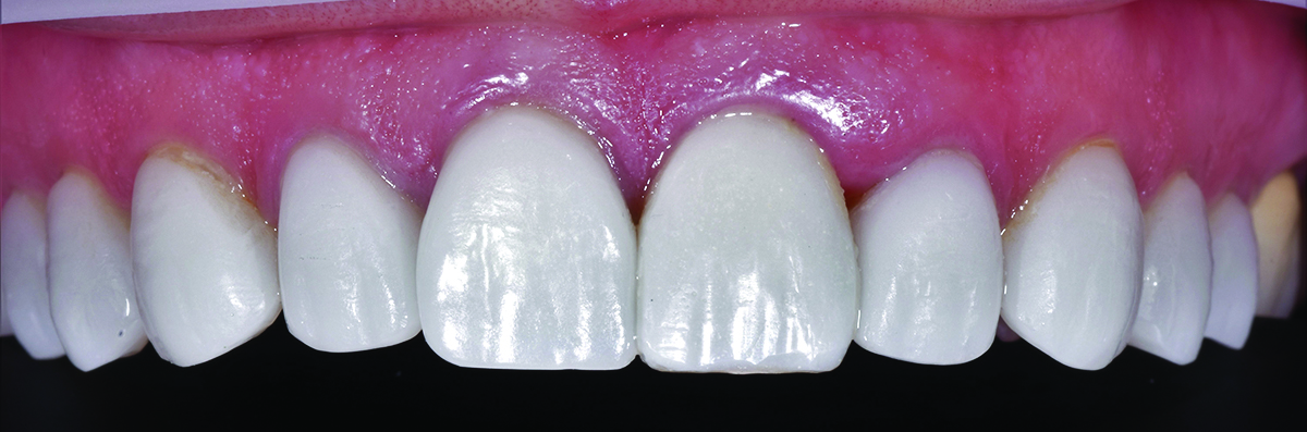 Colour Modifiers To Match An Odd Shade for an esthetic smile.