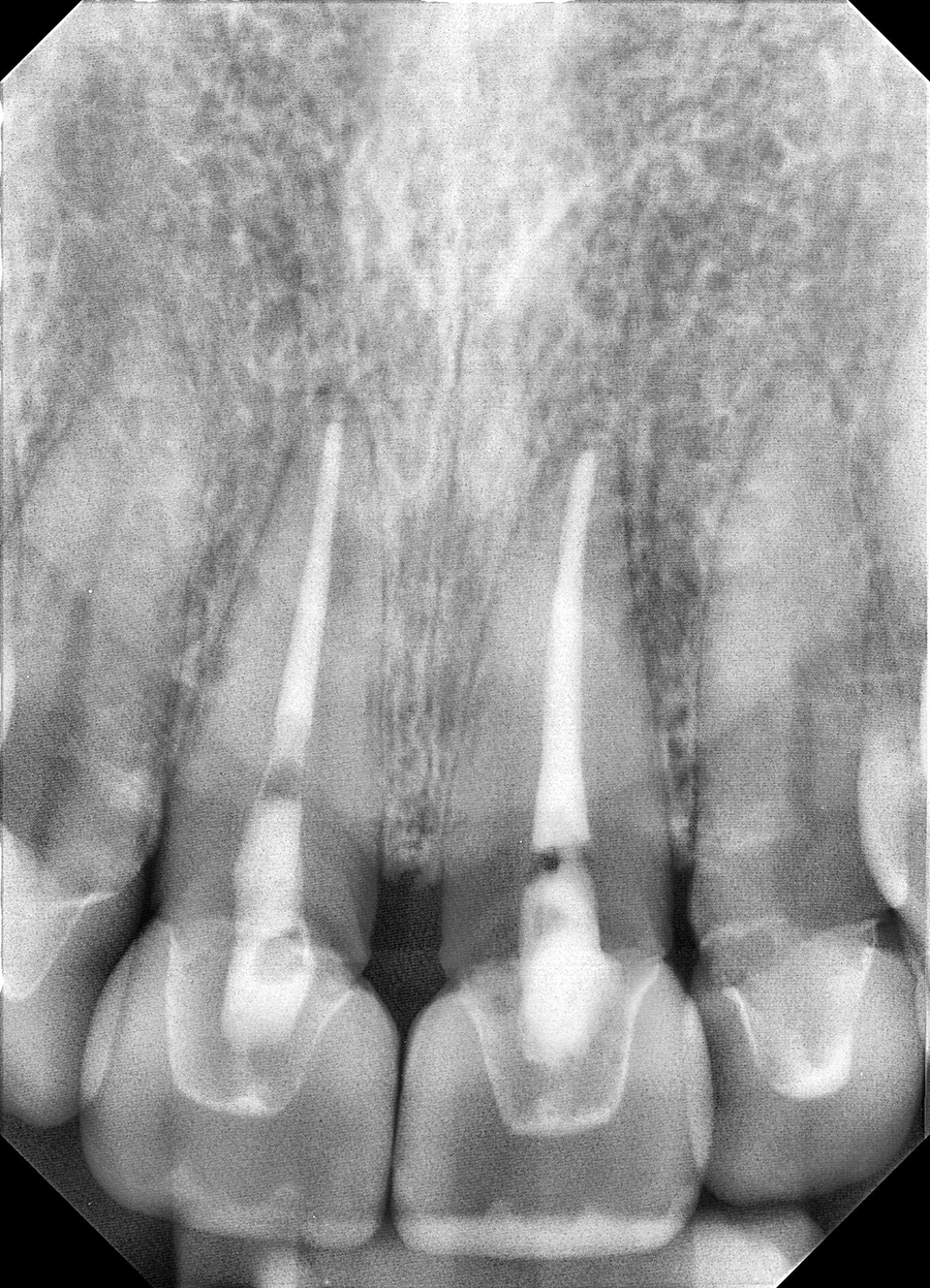Periapical anterior radiograph.