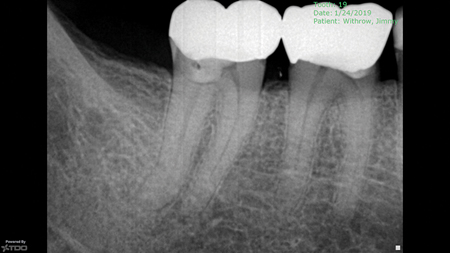 Case treated with GentleWave™ irrigant activation