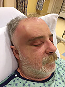Temporal Space Abscess Misdiagnosed As Temporal Arteritis: A Case Report