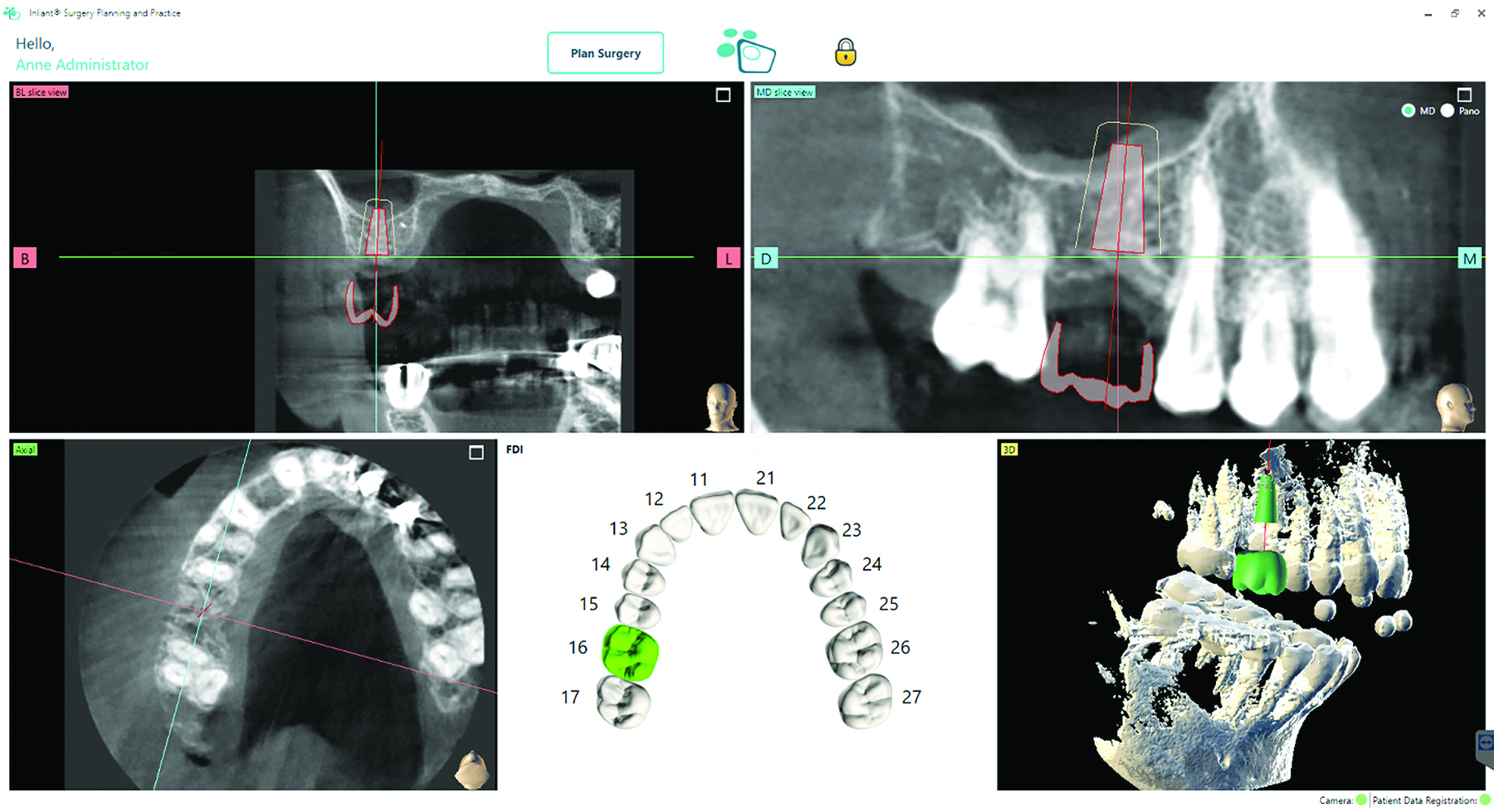 Inliant software allows planning of the final implant position in relation to the prosthesis.