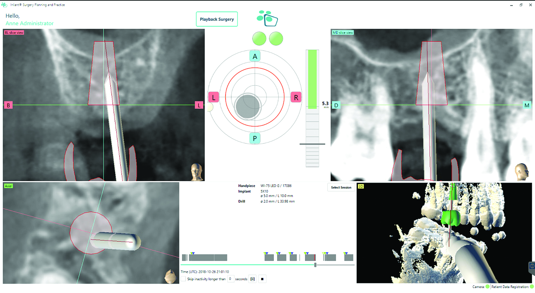 Intraoperative real-time visualization of the drill as it moves through planned osteotomy and its relation to critical anatomy, such as the sinus floor.