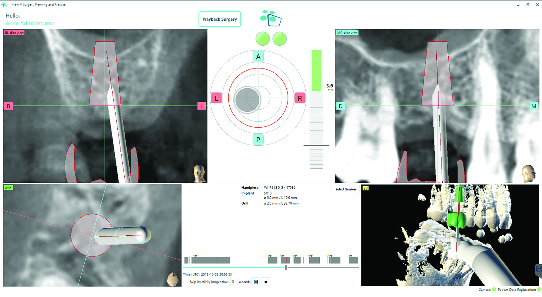 Correcting the osteotomy with dynamic navigation as a visual guide.