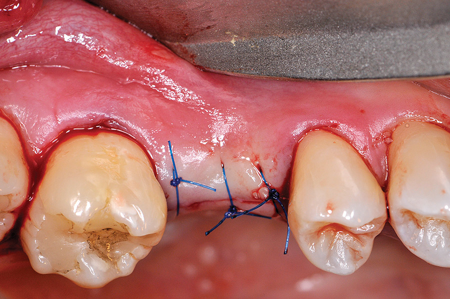 The flap is repositioned over the PRP fibrin clot placed over the crest and implant to thicken the tissue on the buccal, primary closure is achieved and secured with sutures.