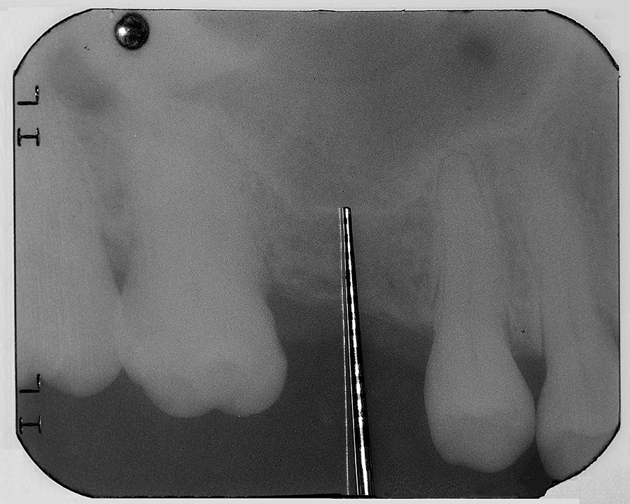 Radiograph demonstrating insufficient crestal height to house an implant